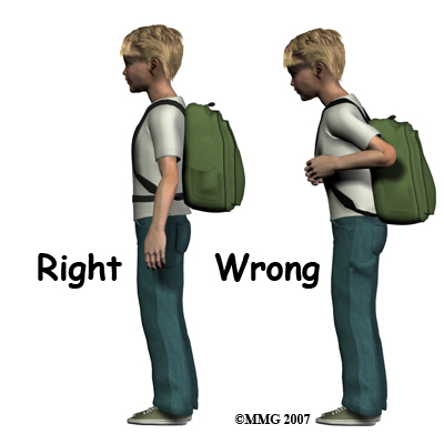 child's posture with back pack